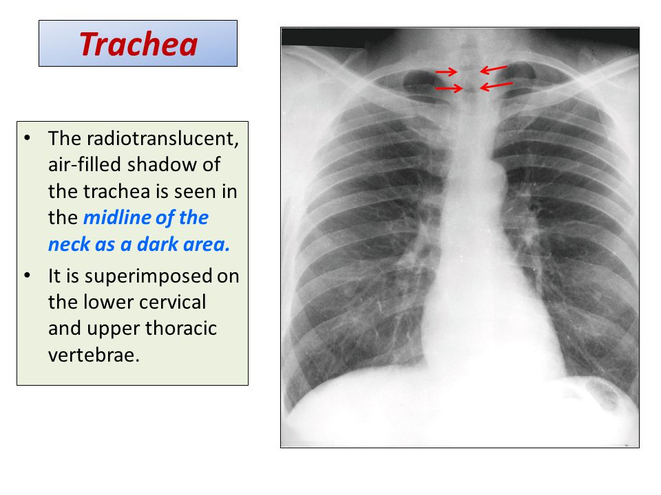 Trachea The radiotranslucent, air-filled shadow of the trachea is seen in the midline of the neck as a dark area.