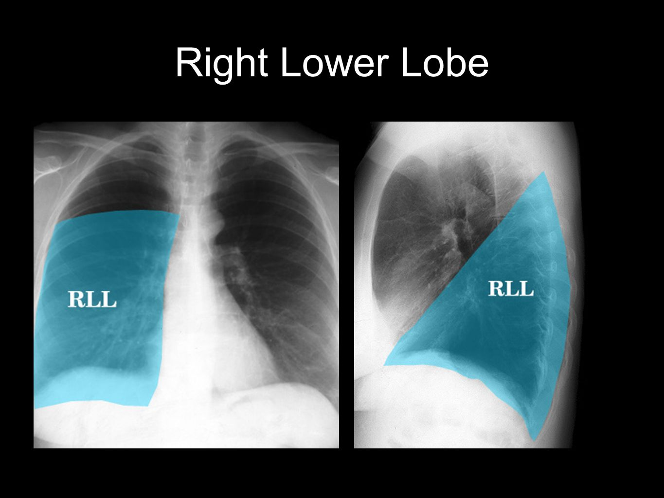 Right Lower Lobe