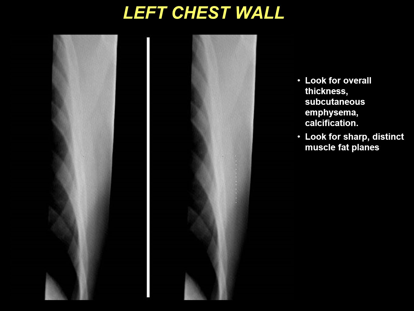 LEFT CHEST WALL Look for overall thickness, subcutaneous emphysema, calcification.