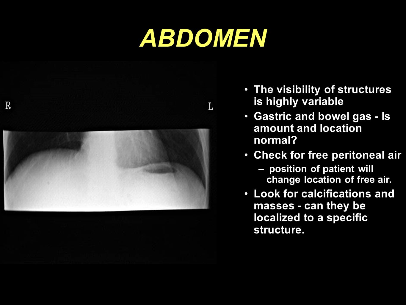 ABDOMEN The visibility of structures is highly variable