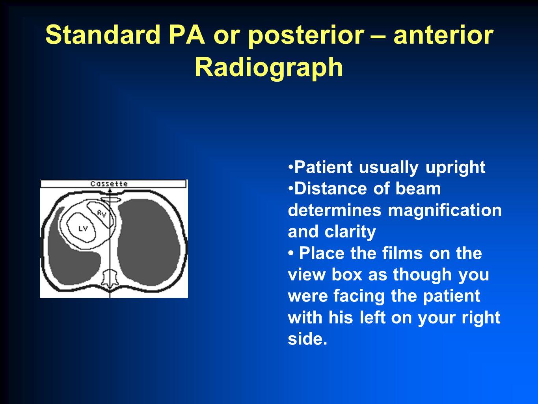 Standard PA or posterior – anterior Radiograph