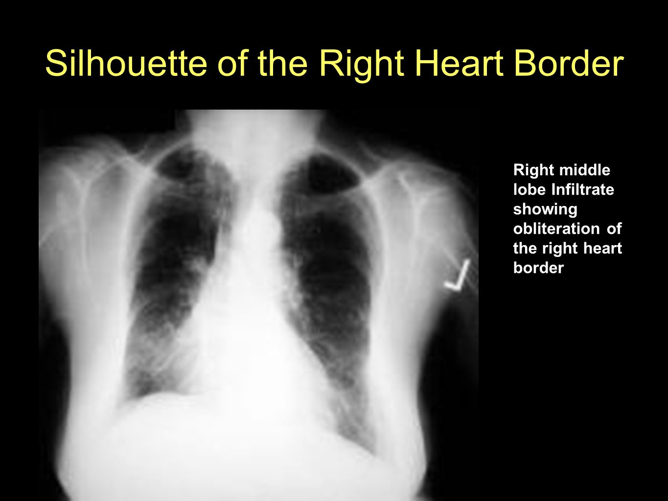 Silhouette of the Right Heart Border