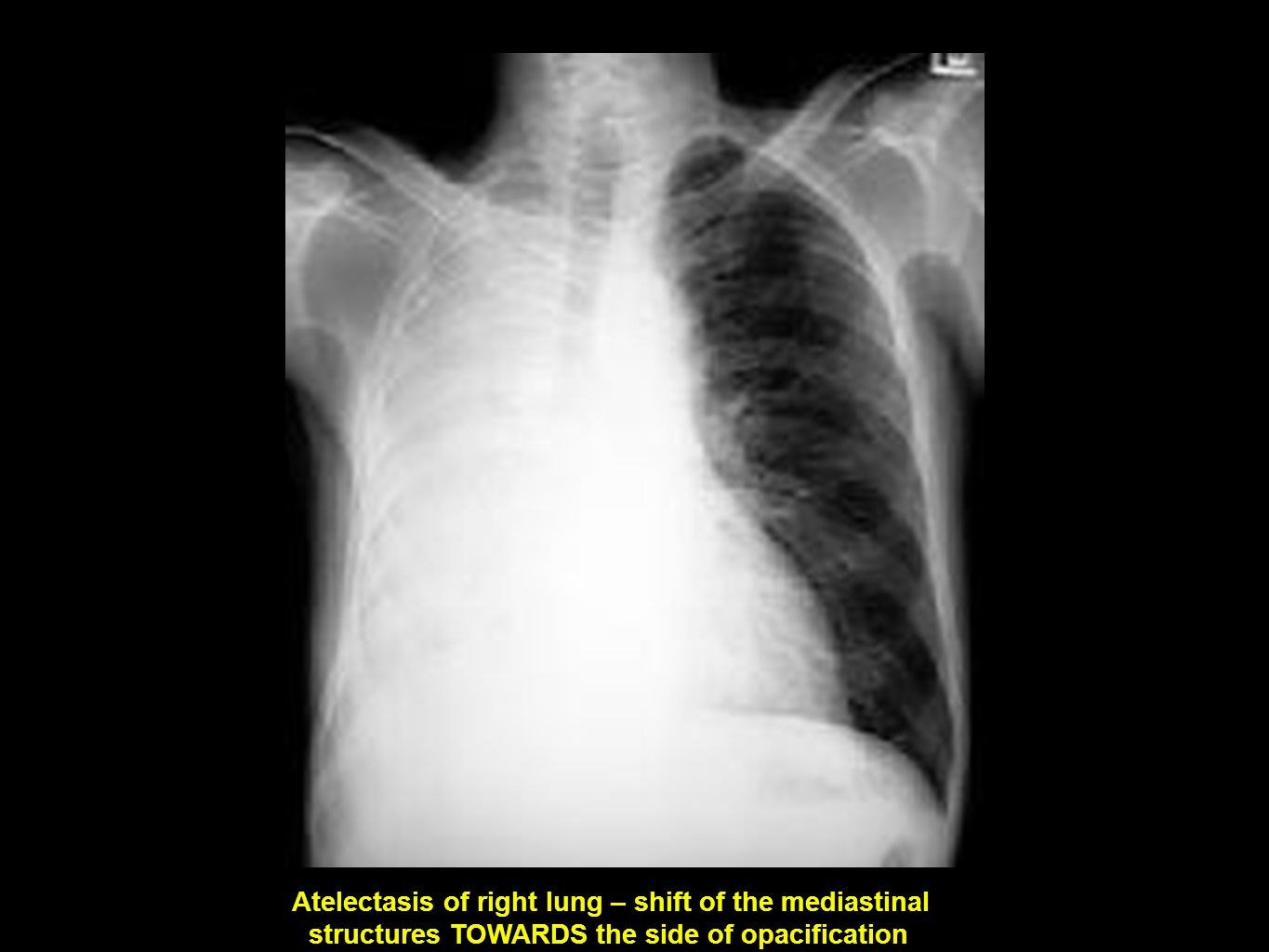 Atelectasis of right lung – shift of the mediastinal structures TOWARDS the side of opacification