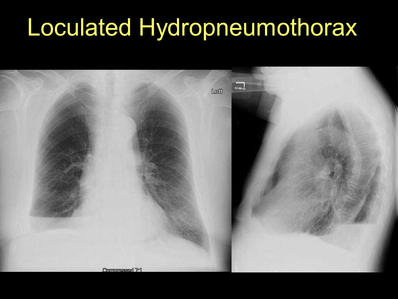 Loculated Hydropneumothorax