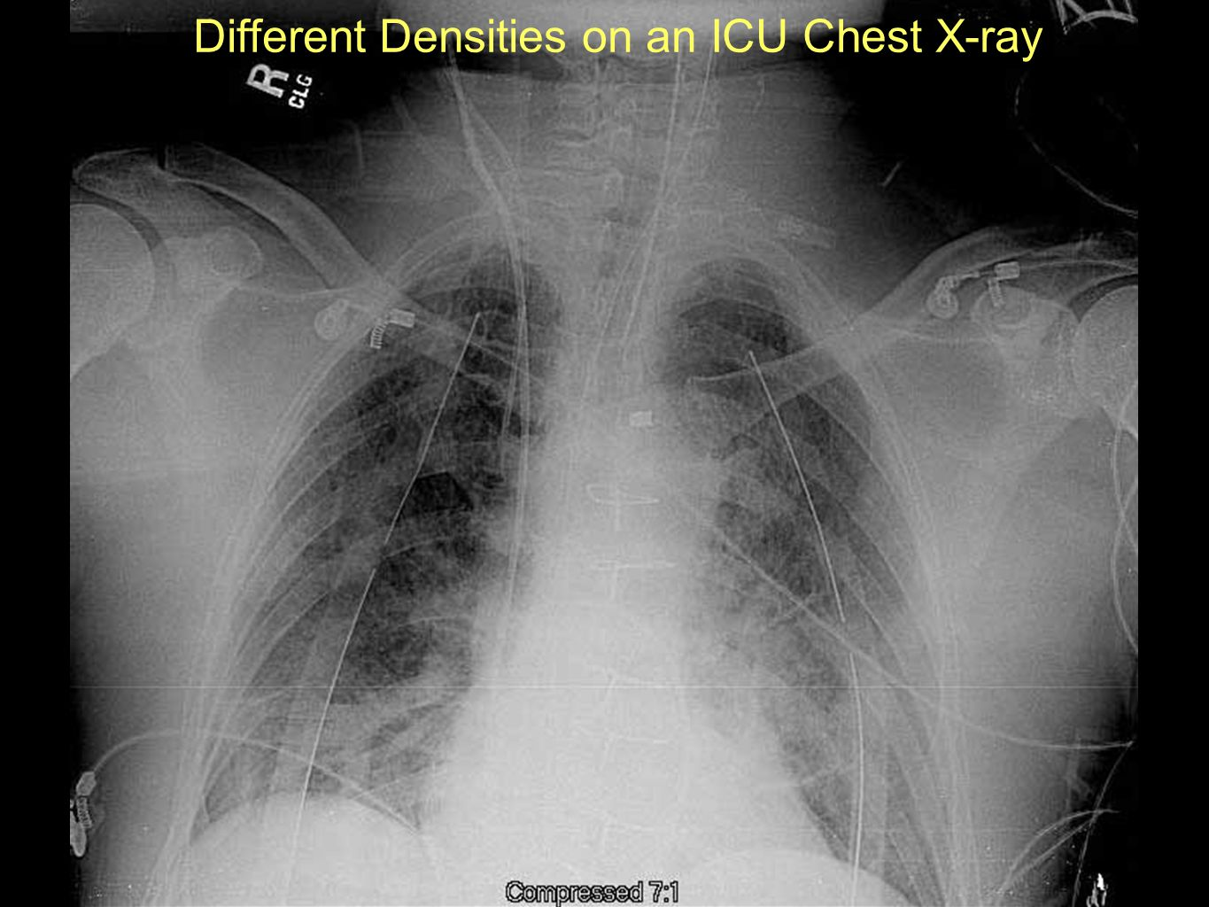 Different Densities on an ICU Chest X-ray