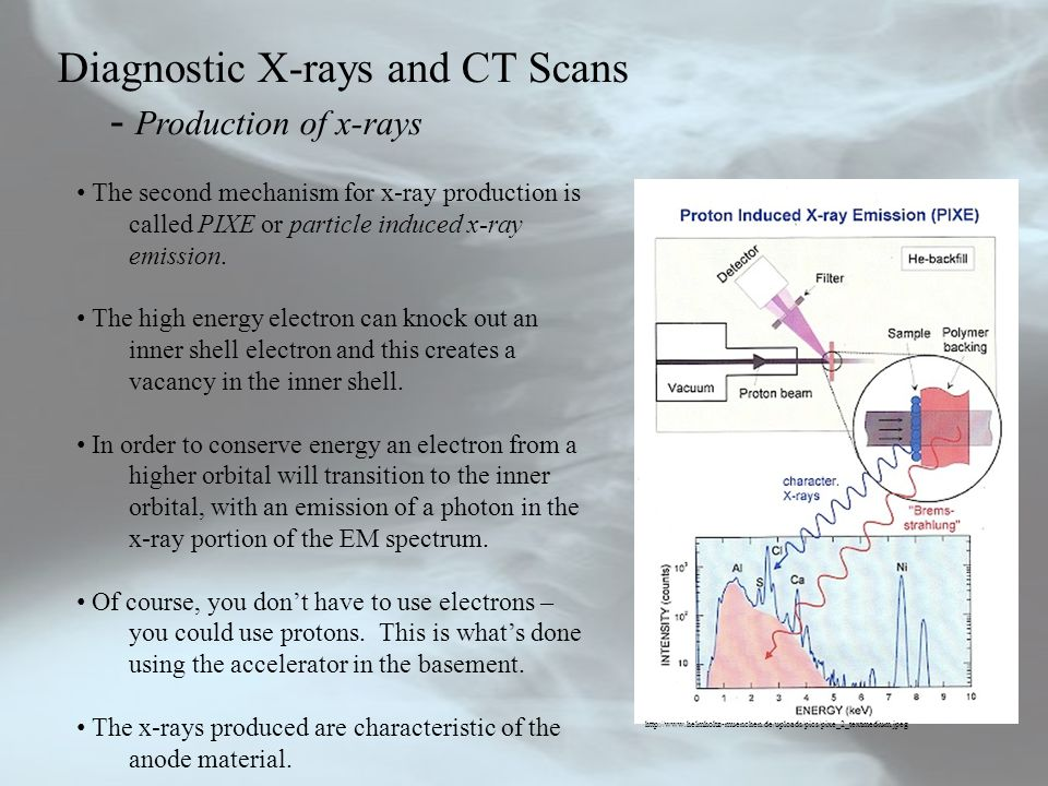Diagnostic X-rays and CT Scans - Production of x-rays