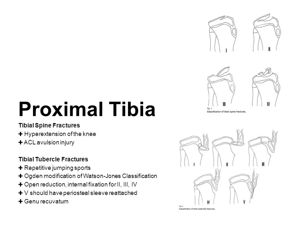Proximal Tibia Tibial Spine Fractures Hyperextension of the knee