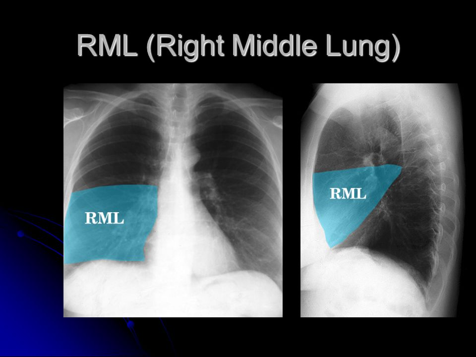 RML (Right Middle Lung)