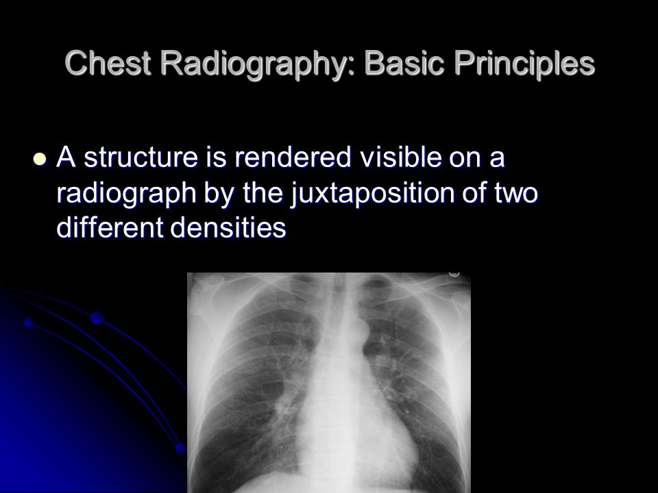 Chest Radiography: Basic Principles