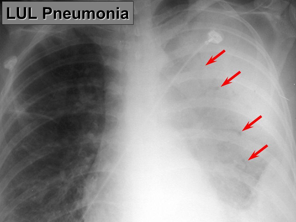 LUL Pneumonia