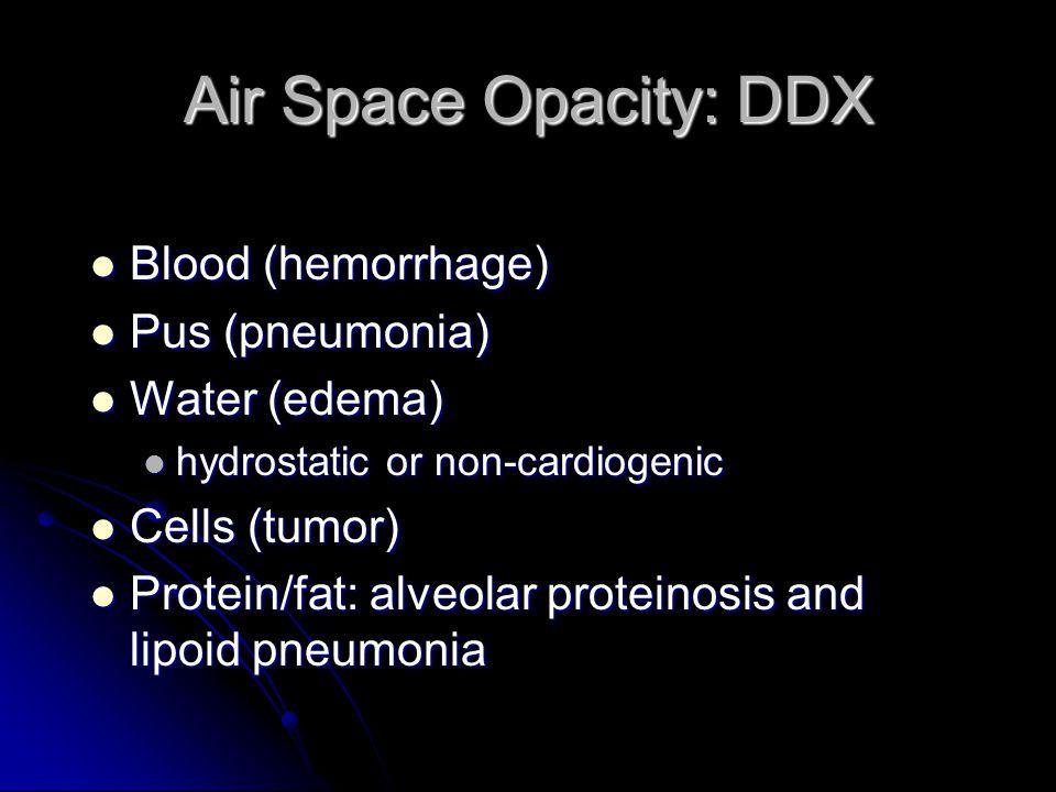 Air Space Opacity: DDX Blood (hemorrhage) Pus (pneumonia)