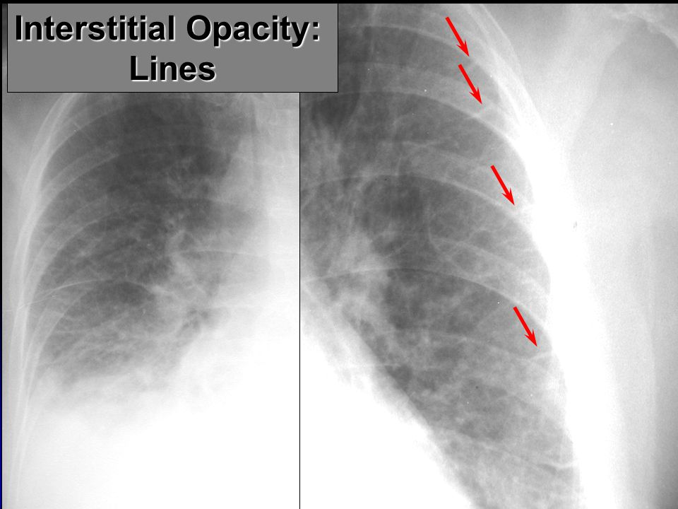 Interstitial Opacity: