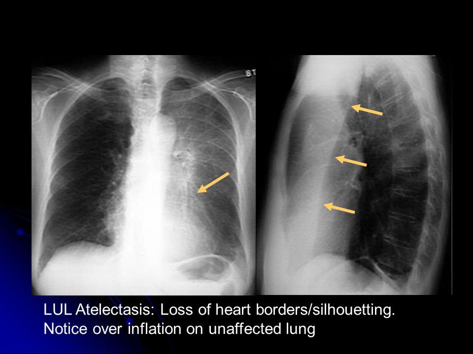 LUL Atelectasis: Loss of heart borders/silhouetting