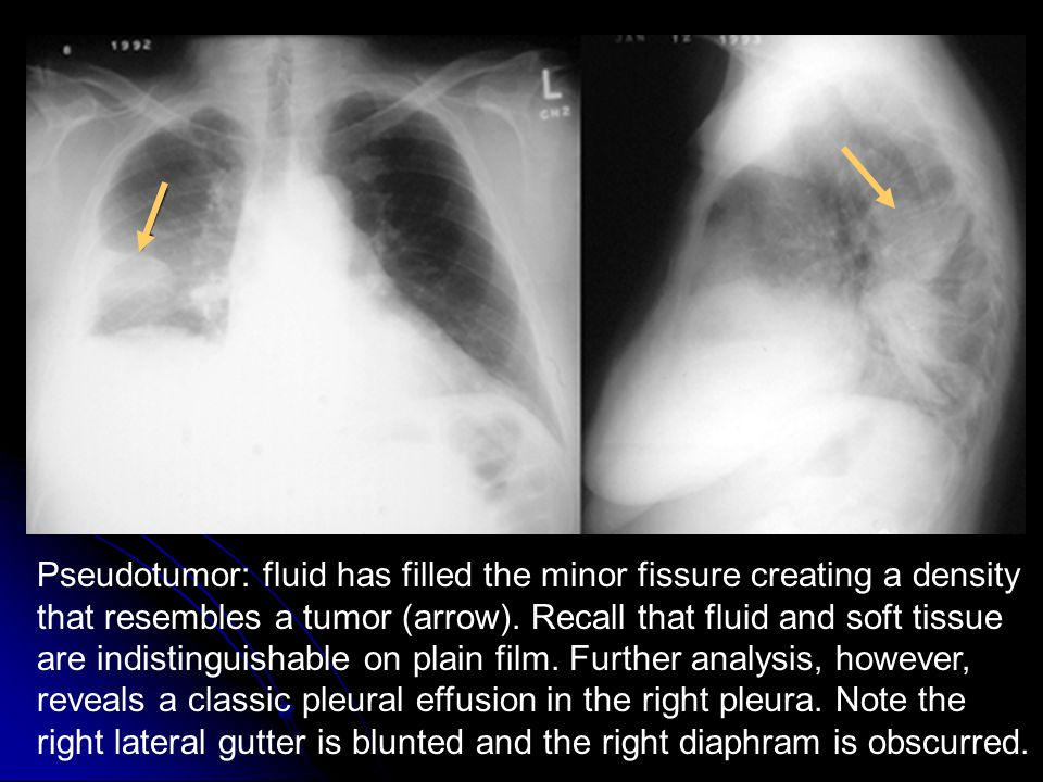Pseudotumor: fluid has filled the minor fissure creating a density that resembles a tumor (arrow).