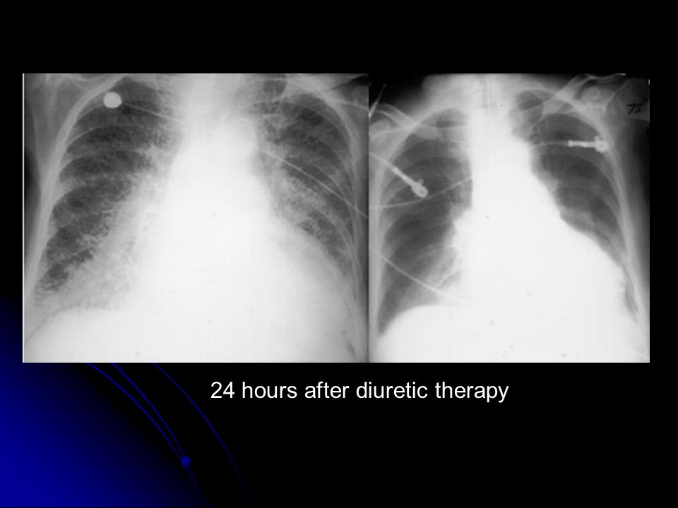 24 hours after diuretic therapy
