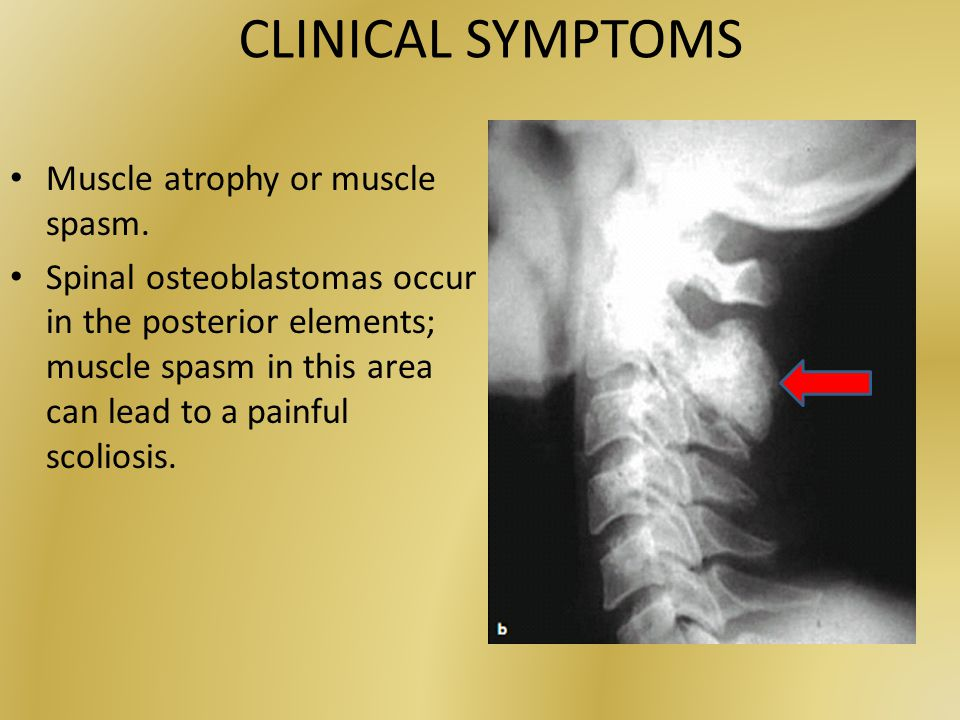 CLINICAL SYMPTOMS Muscle atrophy or muscle spasm.