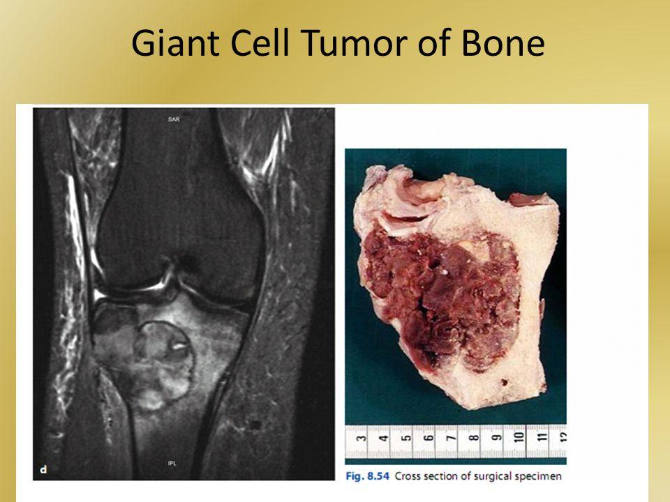 Giant Cell Tumor of Bone