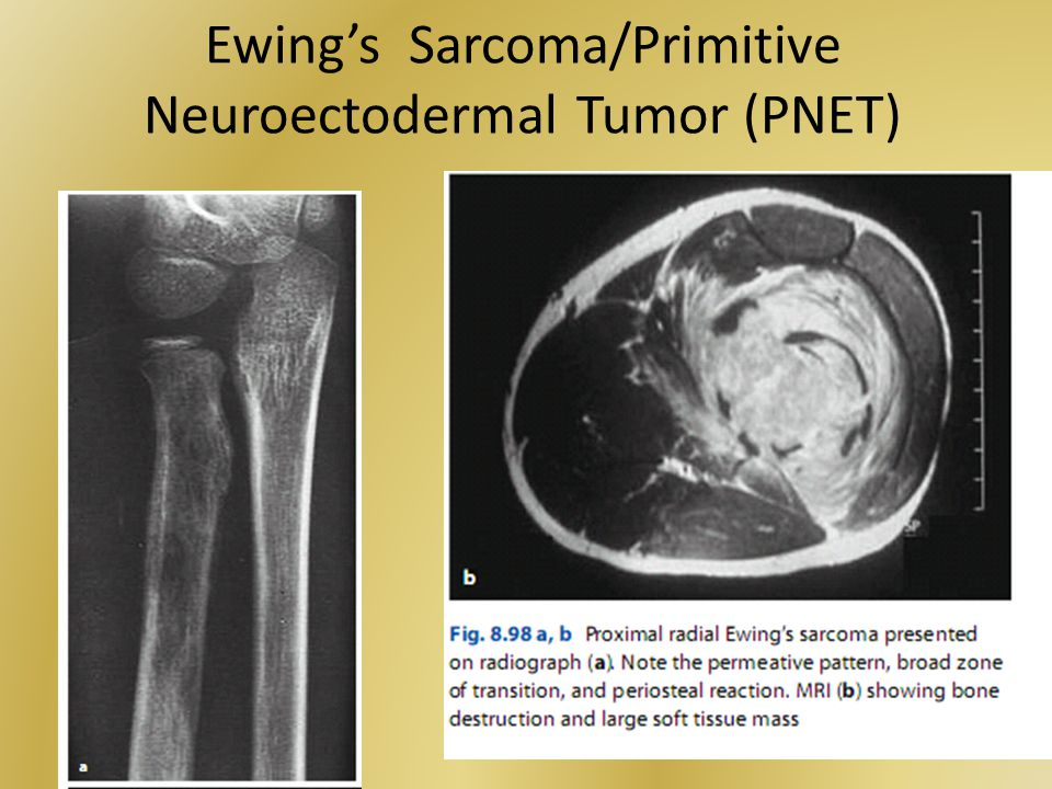 Ewing's Sarcoma/Primitive Neuroectodermal Tumor (PNET)