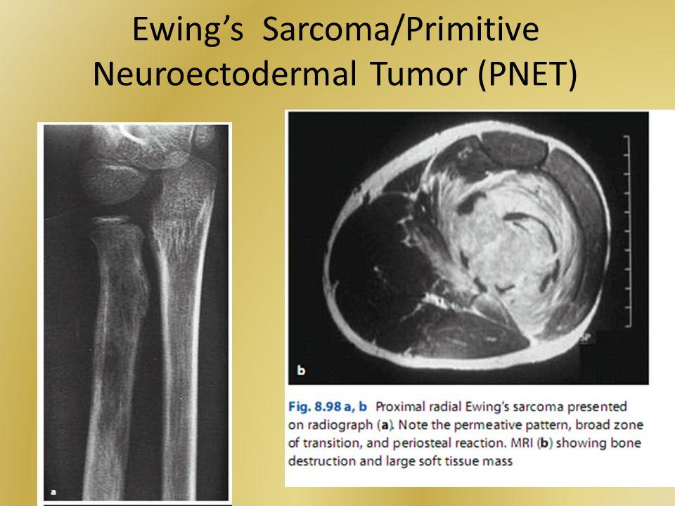 Ewing's Sarcoma/Primitive Neuroectodermal Tumor (PNET)