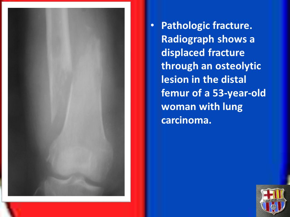 Pathologic fracture.