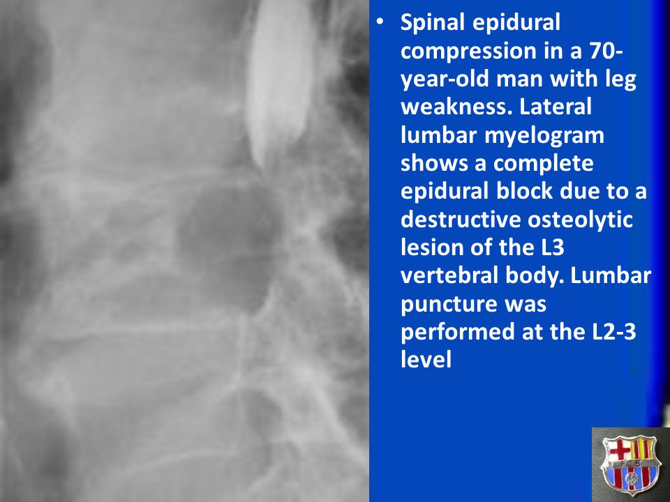 Spinal epidural compression in a 70-year-old man with leg weakness