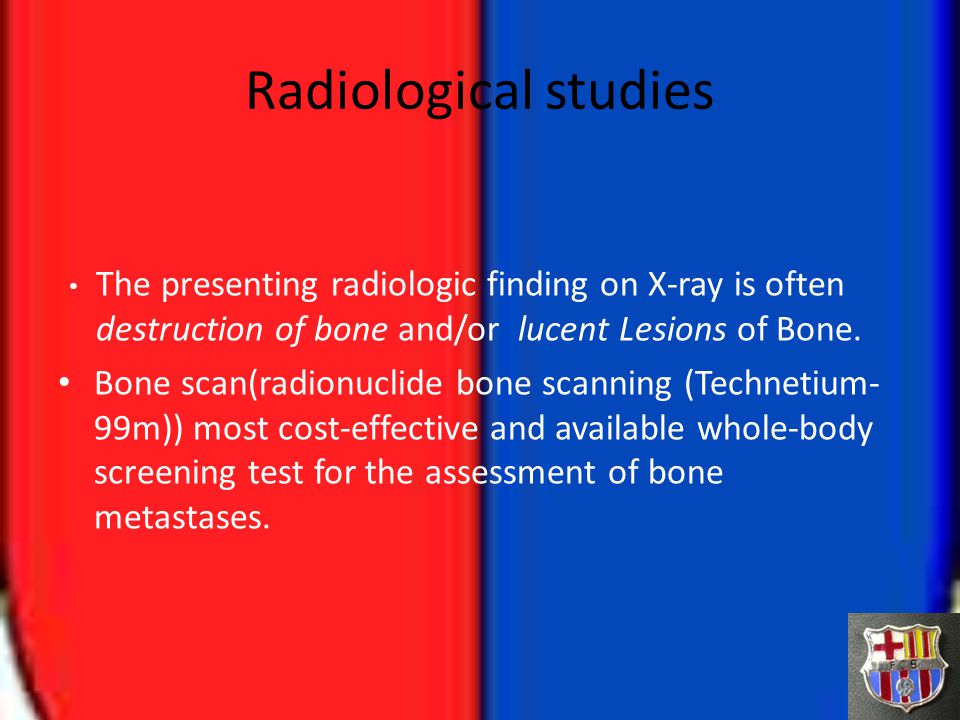 Radiological studies The presenting radiologic finding on X-ray is often destruction of bone and/or lucent Lesions of Bone.