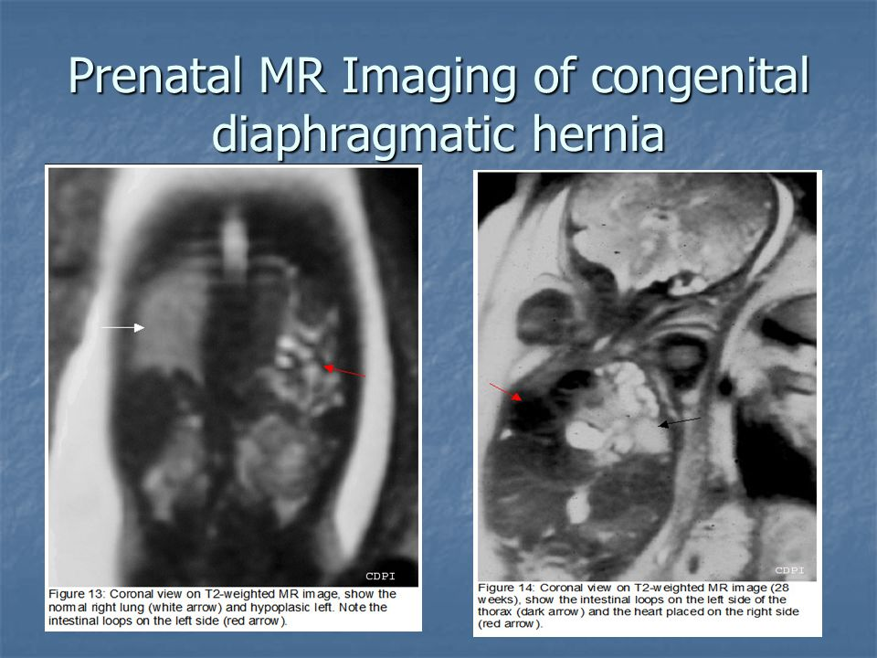 Prenatal MR Imaging of congenital diaphragmatic hernia