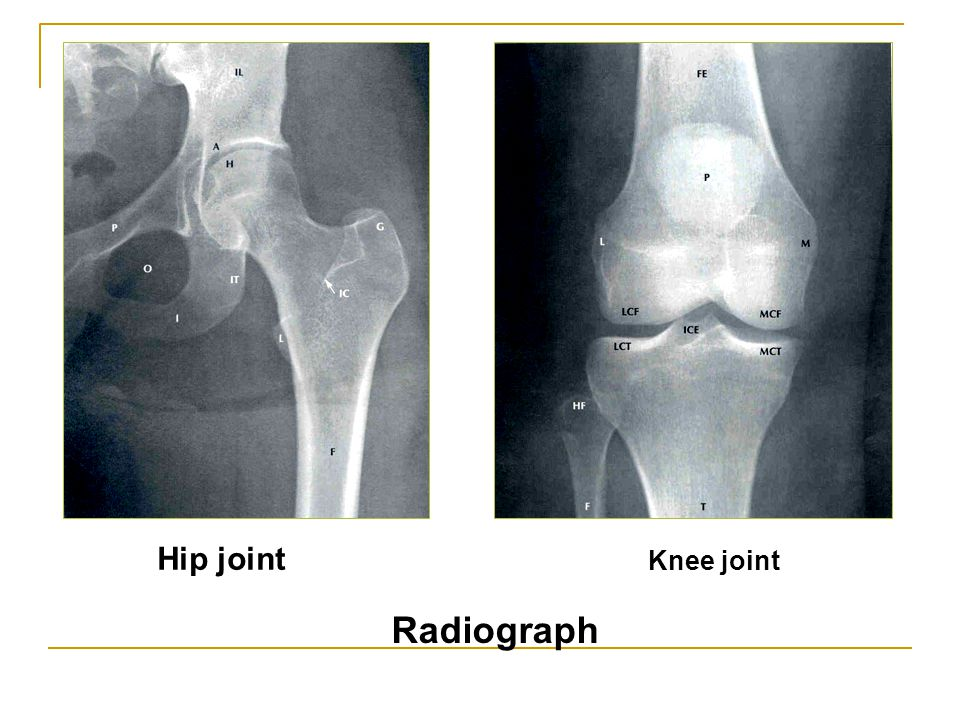 Hip joint Knee joint Radiograph