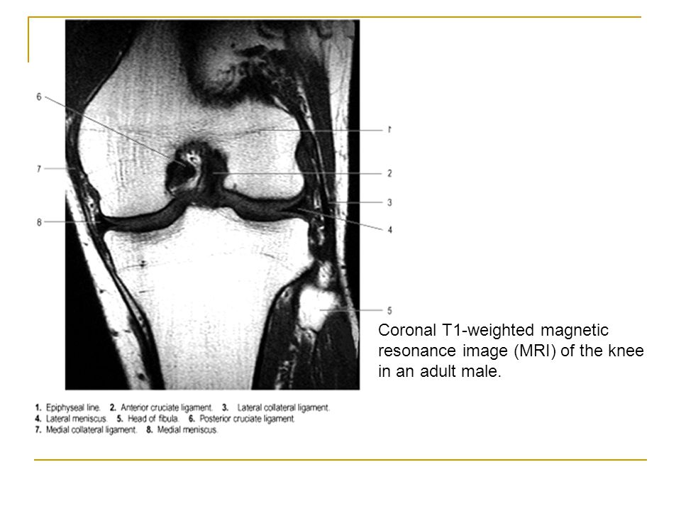 Coronal T1-weighted magnetic resonance image (MRI) of the knee in an adult male.