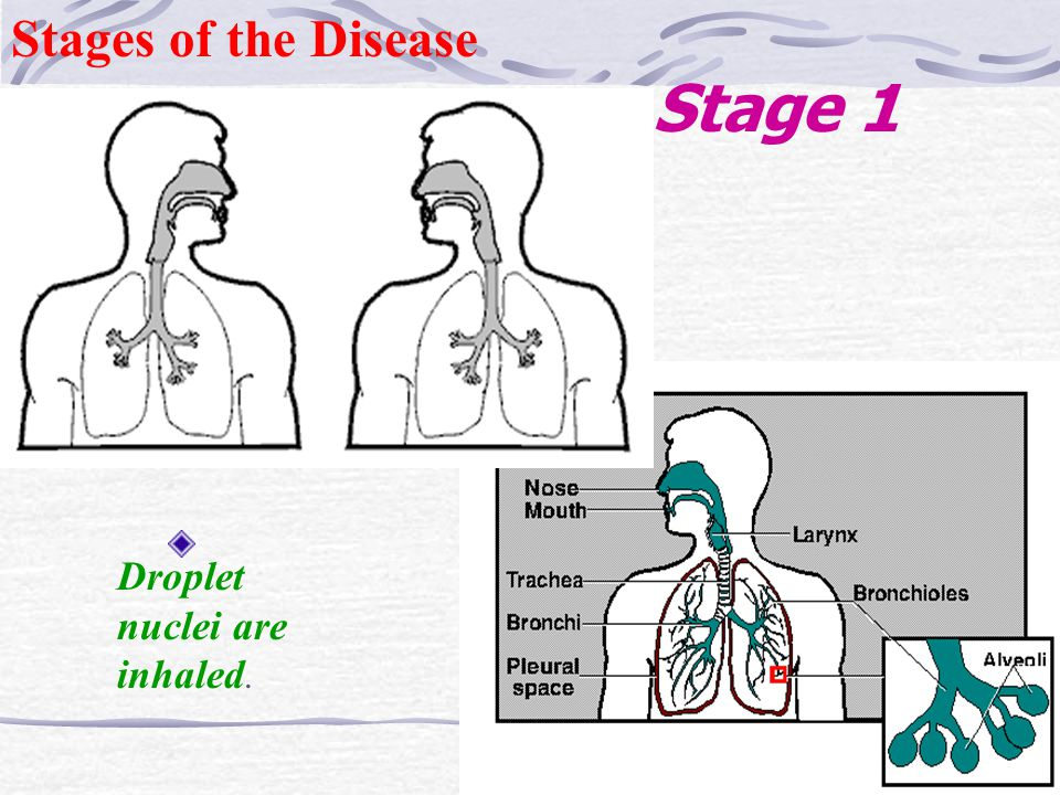 Stages of the Disease Stage 1 Droplet nuclei are inhaled.
