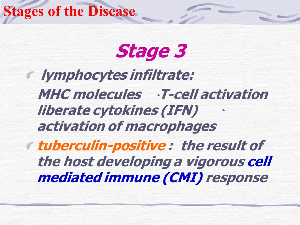 Stage 3 Stages of the Disease lymphocytes infiltrate: