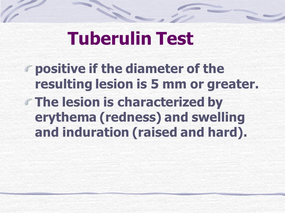 Tuberulin Test positive if the diameter of the resulting lesion is 5 mm or greater.