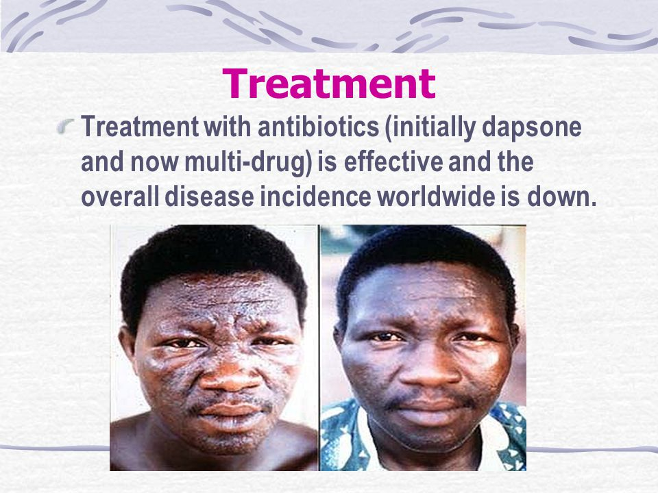 Treatment Treatment with antibiotics (initially dapsone and now multi-drug) is effective and the overall disease incidence worldwide is down.