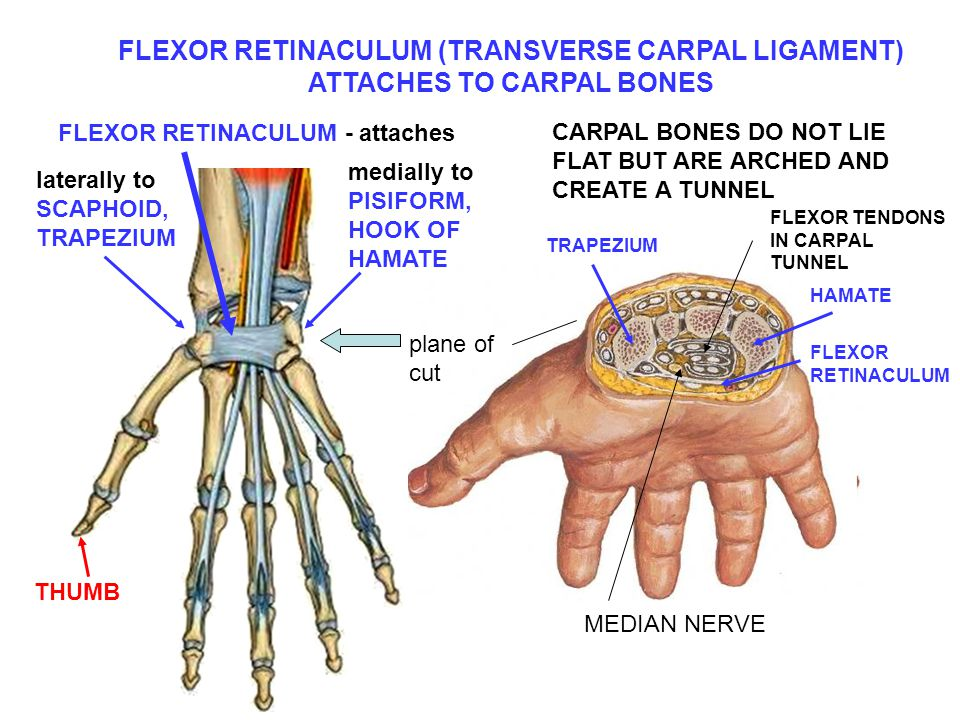 FLEXOR RETINACULUM (TRANSVERSE CARPAL LIGAMENT) ATTACHES TO CARPAL BONES