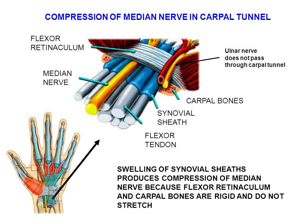 COMPRESSION OF MEDIAN NERVE IN CARPAL TUNNEL