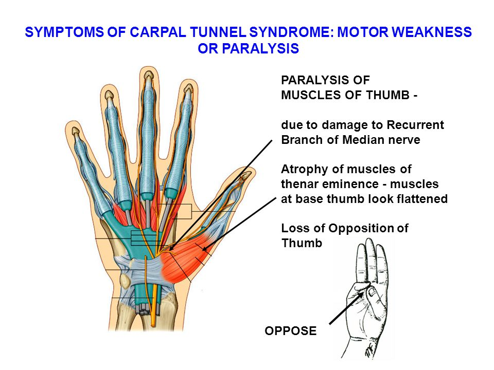 SYMPTOMS OF CARPAL TUNNEL SYNDROME: MOTOR WEAKNESS
