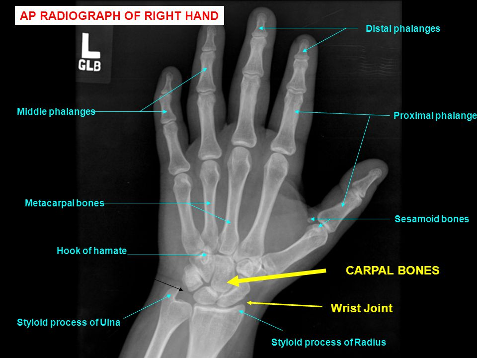 AP RADIOGRAPH OF RIGHT HAND