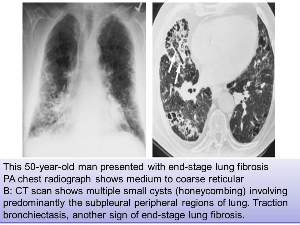 This 50-year-old man presented with end-stage lung fibrosis