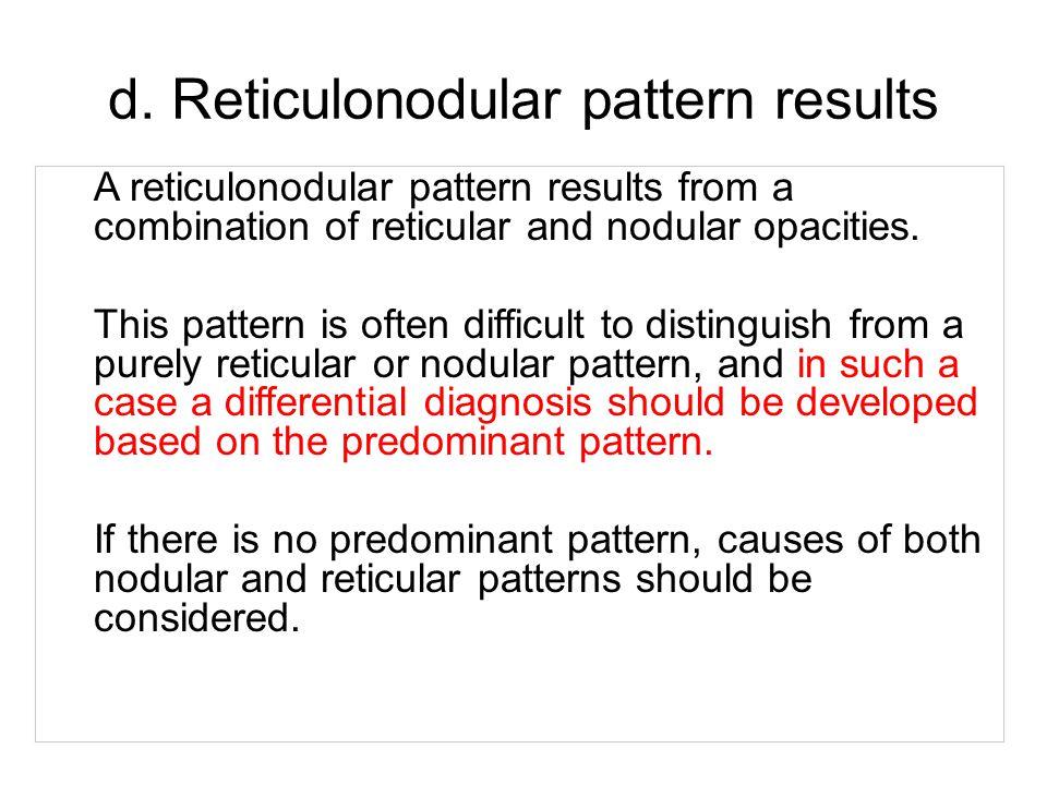 d. Reticulonodular pattern results
