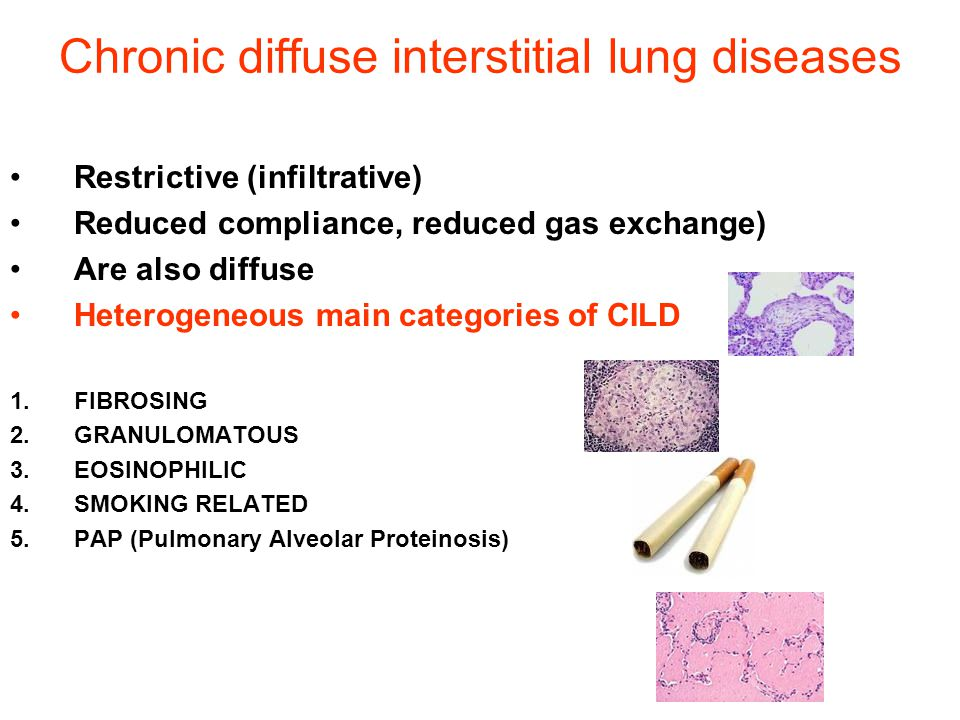Chronic diffuse interstitial lung diseases