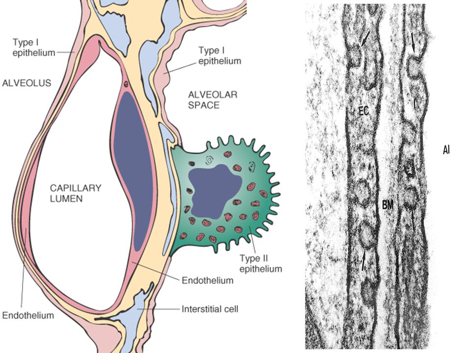 The space between the endothelium and the type-1 pneumocyte, is the blood air interface