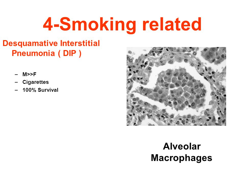 4-Smoking related Alveolar Macrophages