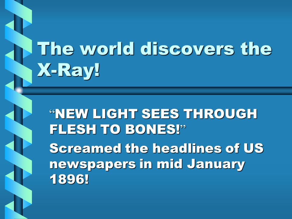 The world discovers the X-Ray!