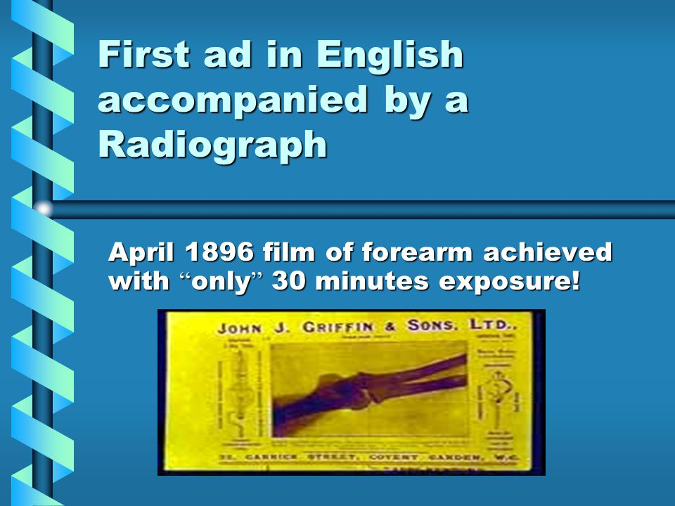 First ad in English accompanied by a Radiograph