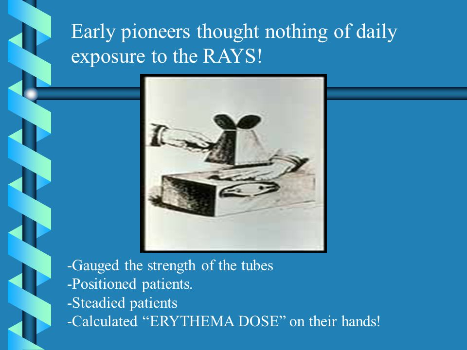 Early pioneers thought nothing of daily exposure to the RAYS!