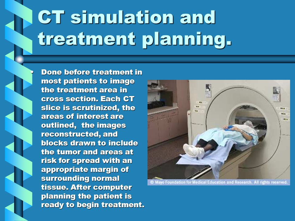 CT simulation and treatment planning.