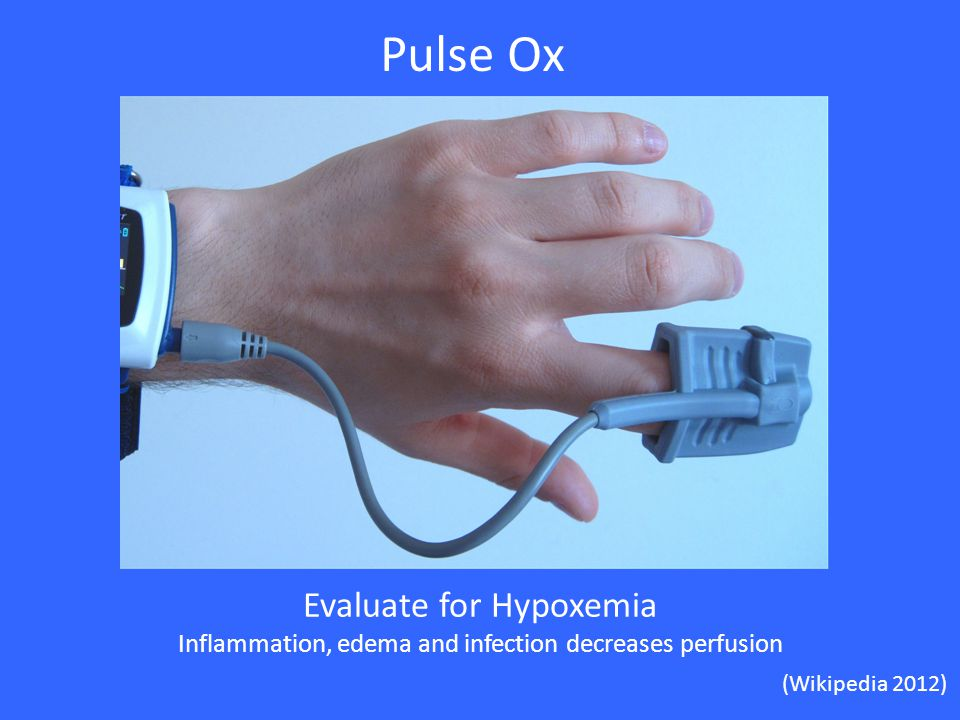 Pulse Ox Evaluate for Hypoxemia