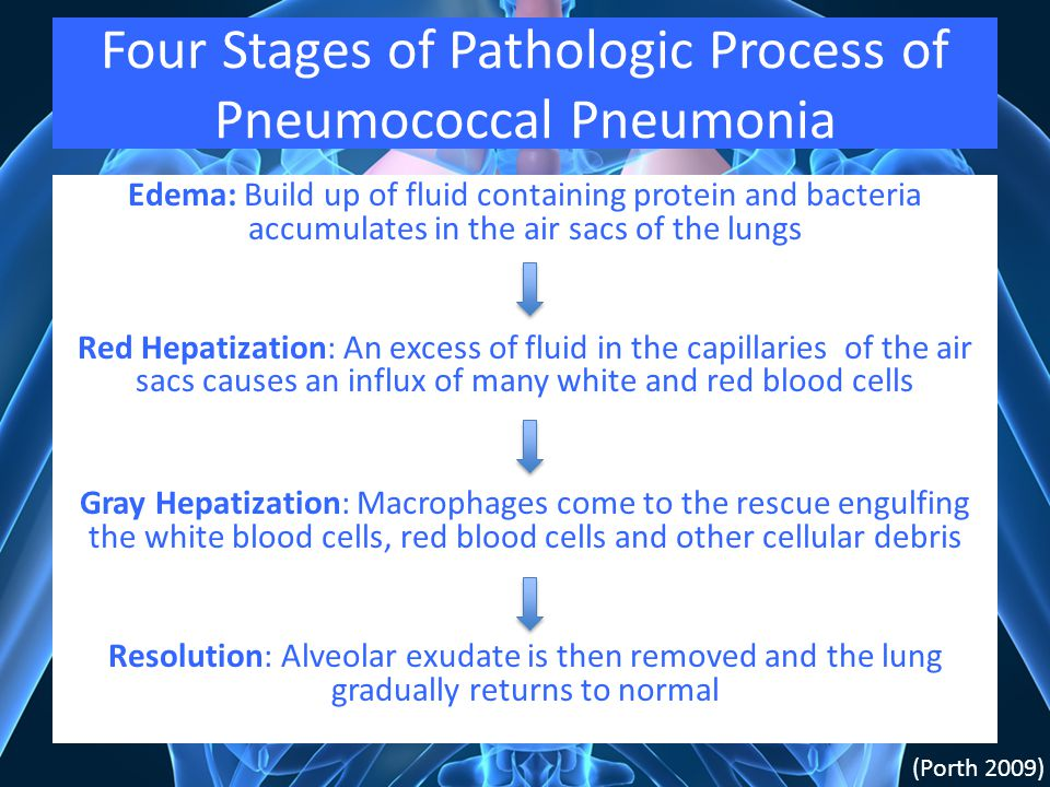 Four Stages of Pathologic Process of Pneumococcal Pneumonia