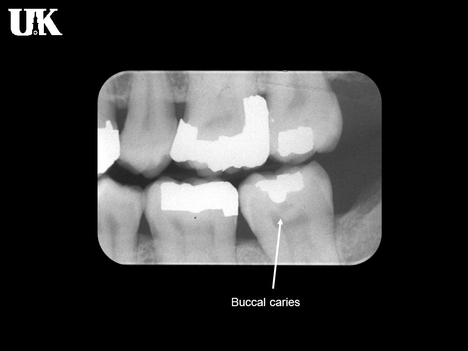 Buccal caries