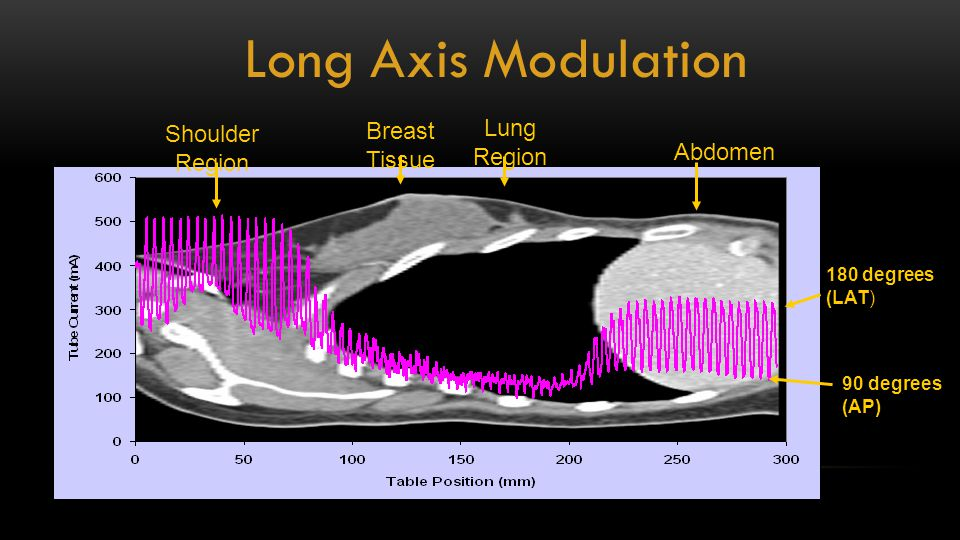 Long Axis Modulation Lung Region Shoulder Region Breast Tissue Abdomen